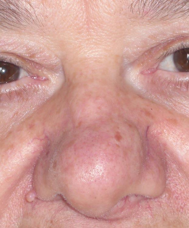 Come su un accordo di acne su una faccia